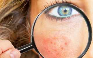 Причины, виды и способы лечения раздражений на лице