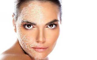 Шелушение кожи: причины и лечение