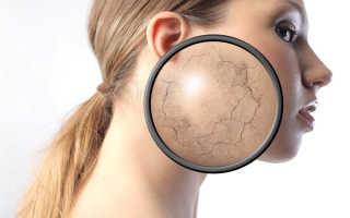 Сухая кожа лица: причины, правила ухода, лучшие домашние рецепты